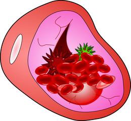 Vaso sanguigno con globuli rossi e virus