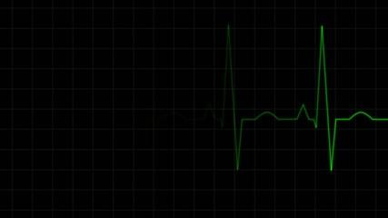 EKG Wellenform Animation Compilation