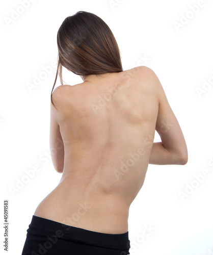 Doctor patient spine scoliosis