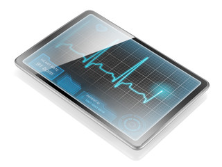 Tablet displaying ECG