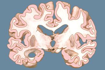 alzheimer brain court