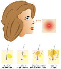 Acne is divided into four types