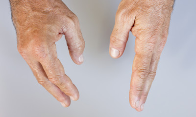 Swollen hand and healthy male hand