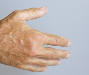 A picture of swollen male hand-closeup