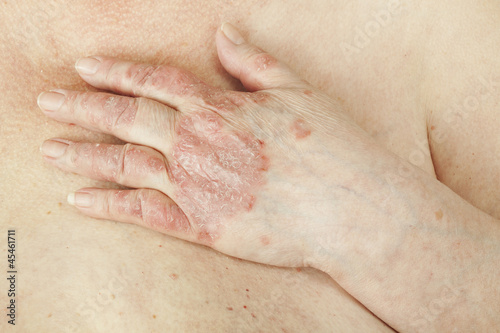 Psoriasis vulgaris is an disease that affects the skin - 45461711