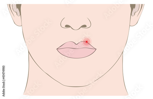 disease herpes virus on mouth