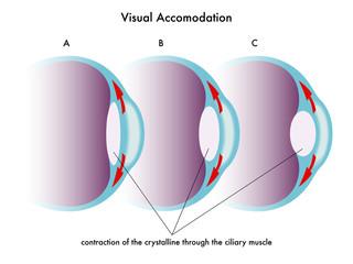 accomodazione visiva