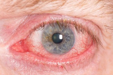 Close up of wide open red and irritated human eye