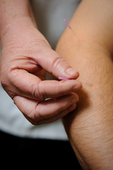 Acupuncture. Needles being inserted into a patient's skin