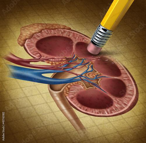 Losing Kidney Health