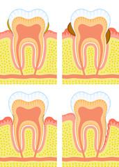 Dental deposit, dental calculus, decay