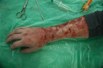 schwere Verbrennung Säureunfall