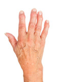 Hand of an old woman with arthritis, isolated on white poster