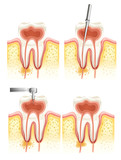Fototapety Dental root canal