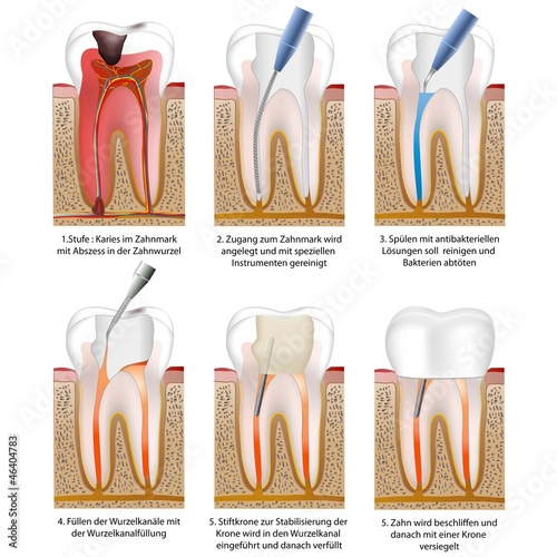 Wurzelbehandlung - root canal treatment with crown