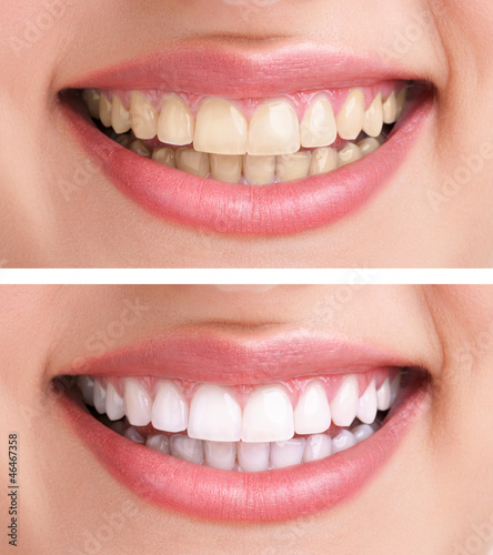 healthy teeth and smile - 46467358