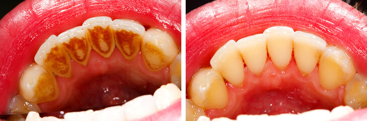Before and after treatment - teeth