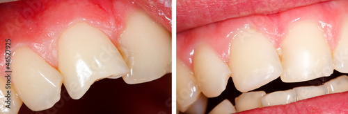 Fractured tooth (incisor) - part of Beforeafter series.
