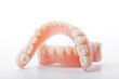 Leinwanddruck Bild - medical denture smile jaws teeth on white background