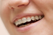 the young girl smiling with braces on teeth