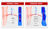 VARICOSE VEINS. Medical illustration