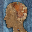 canvas print picture - Brain Disease And Dementia
