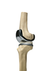 picture of an anatomic study model of an knee replacement