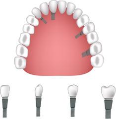 proteasi dentale -dental prosthesis