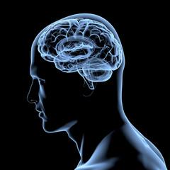 Menschliches Gehirn - Röntgenbild