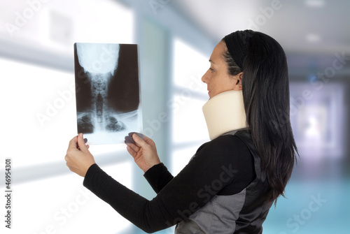 Woman with cervical collar looking her radiography
