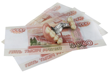 Money for tooth prosthetics