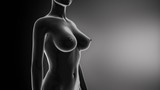 Feemale breast augmentation in timelapse in black poster