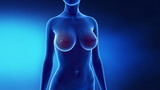 Female breast augmentation in time lapse poster