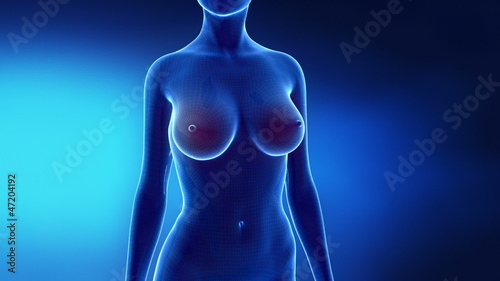 poster of Female breast augmentation in time lapse
