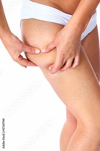 Woman having a cellulite.