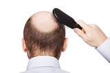 Fototapety Bald man head