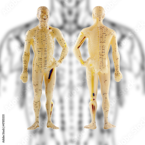 acupuncture chinoise