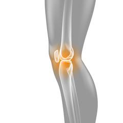 Knie-Schmerzen - Röntgenbild - 3D Grafik