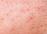 Human skin with acne poster