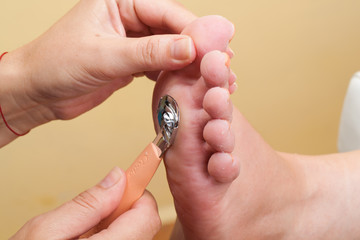 Pedicure procedure