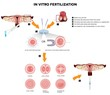In vitro fertilization. Detailed illustrations