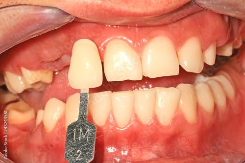 Color choice of teeth