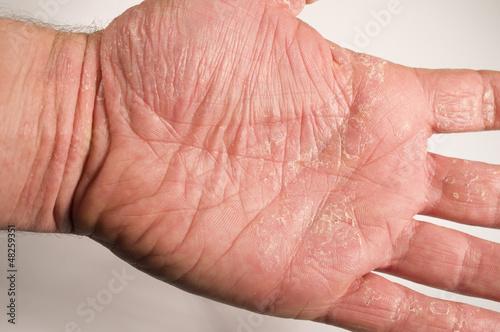Ekzem Hand