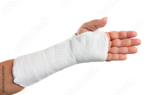 Broken arm with a plaster cast isolated on white