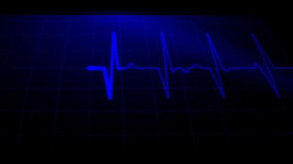 EKG Movie
