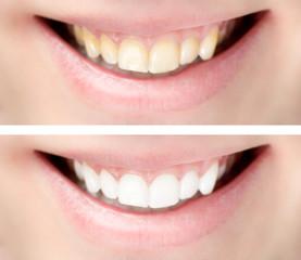 Zahnbelag entfernen