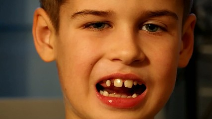 Cute boy showing loose tooth
