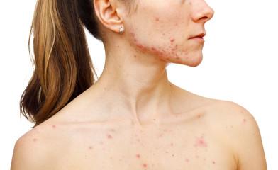Skin problems