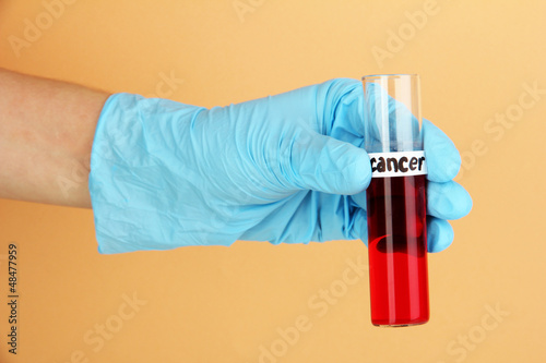 Test tube labeled Cancer in hand on beige background
