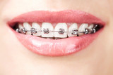 teeth with braces - 48486569